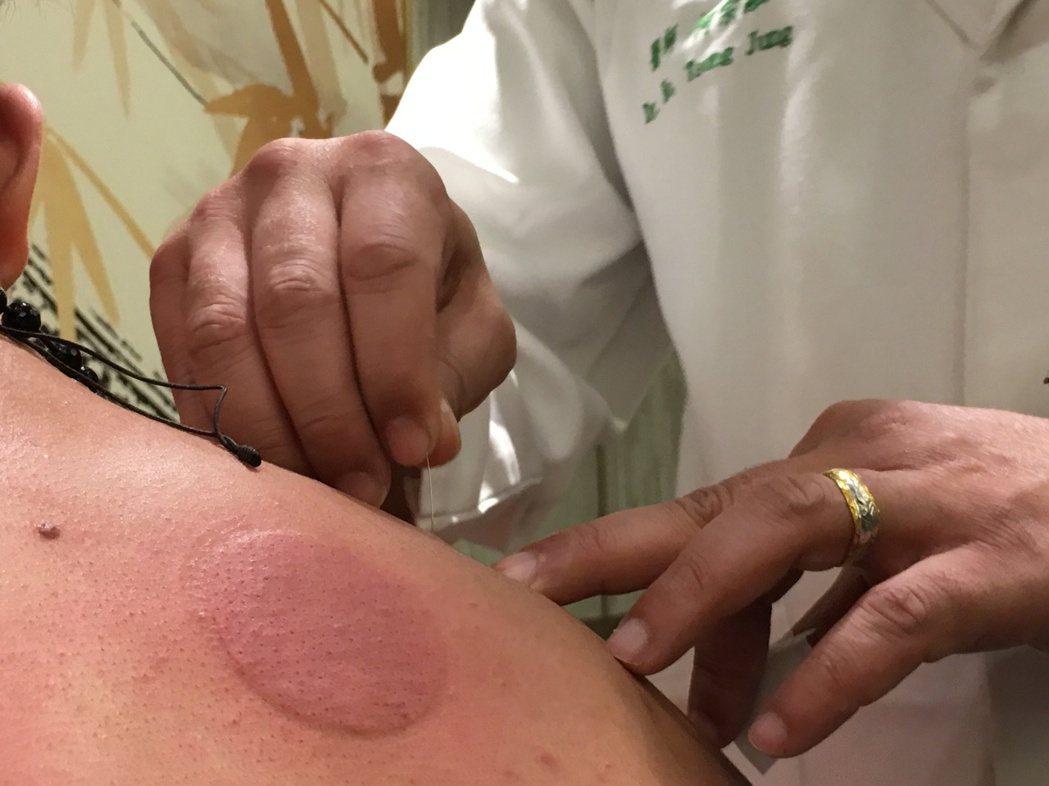 中醫師何宗融示範針灸治療。記者鄧桂芬/攝影