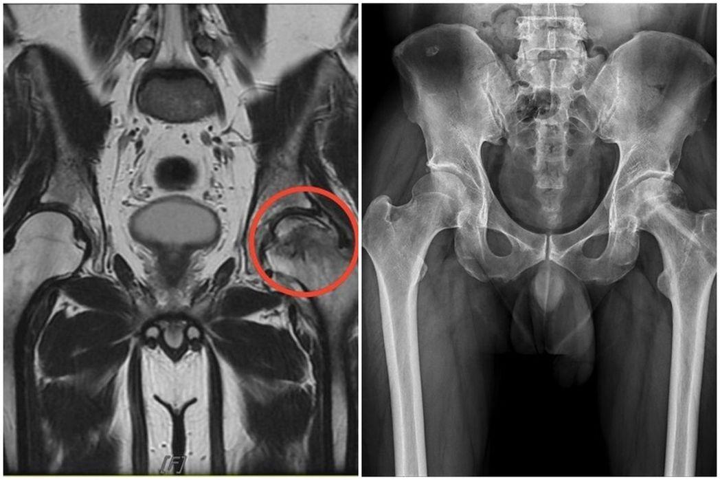 醫師王大翔說明,這名病患因酗酒,左側股骨頭壞死(紅圈處)。圖/王大翔提供