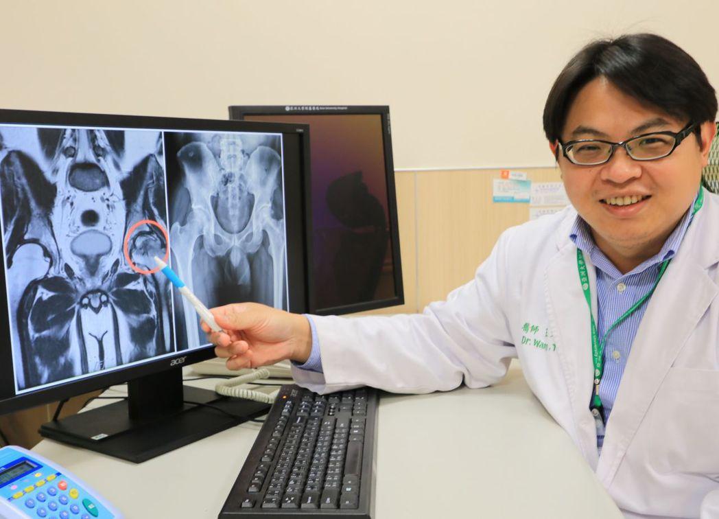 醫師王大翔說明,這名病患因酗酒,左側股骨頭壞死。記者趙容萱/攝影