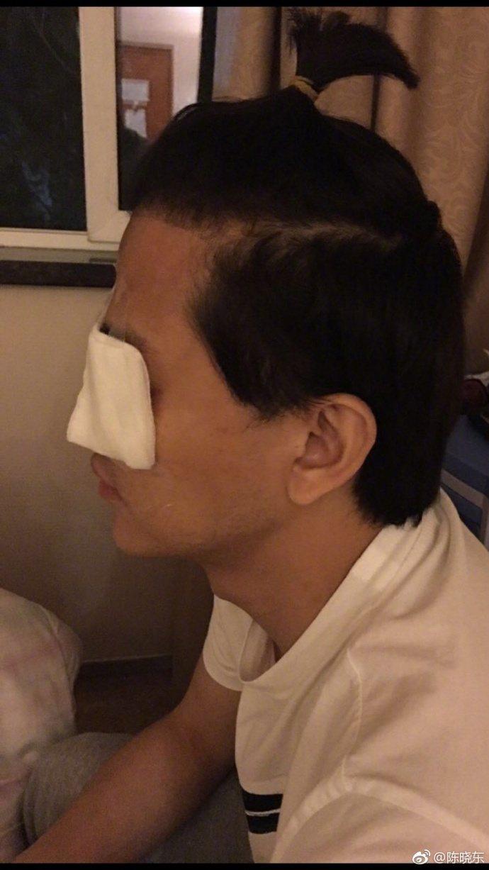香港男星陳曉東在微博發文,表示他因急性青光眼入院開刀。圖/取自微博