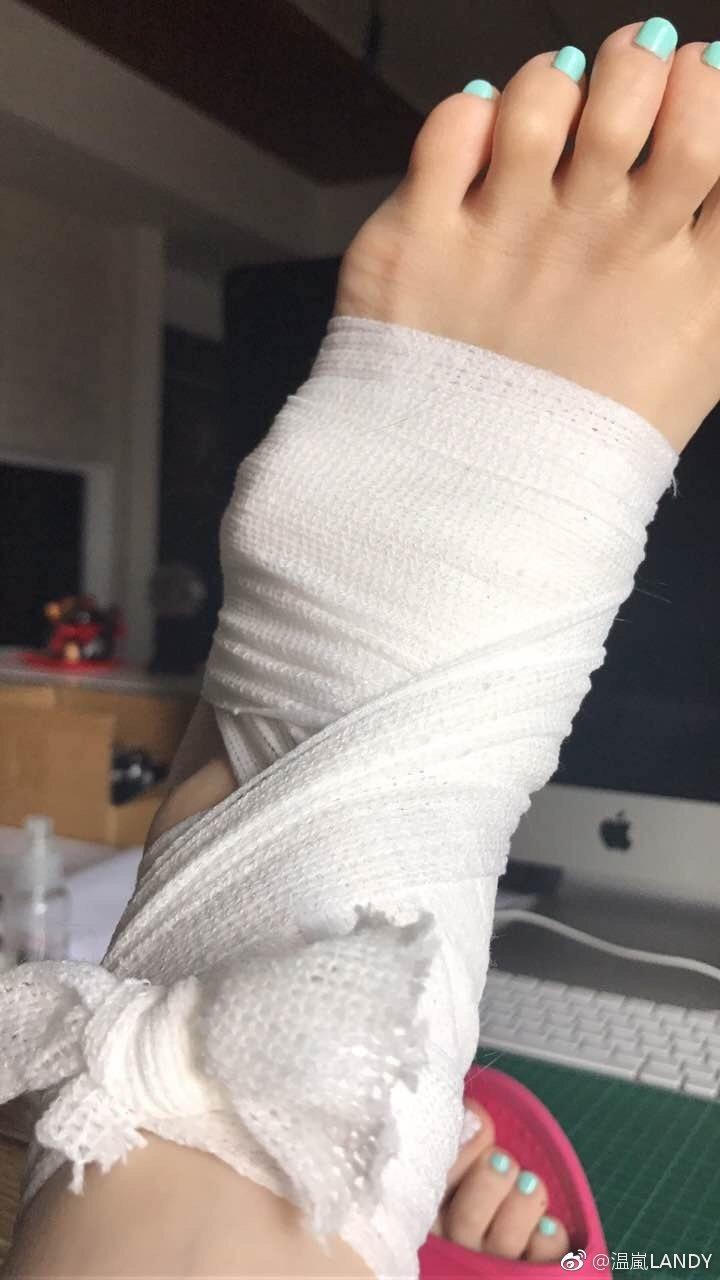 溫嵐在微博貼出腳受傷的照片。 圖/擷自溫嵐微博