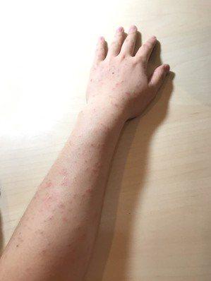 玫瑰糠疹。 中央社