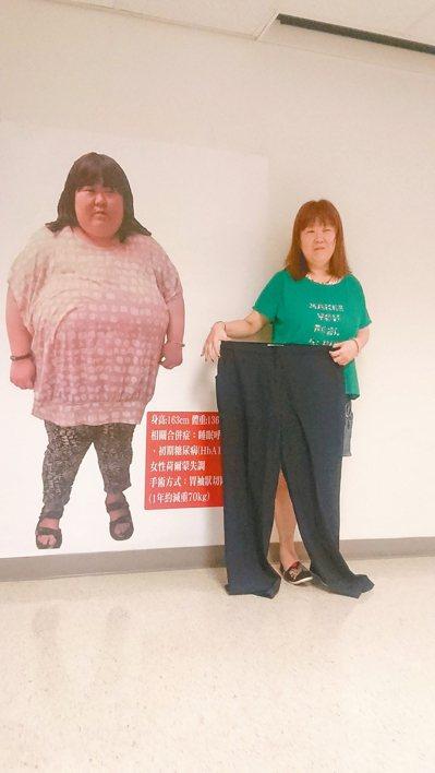 一名鍾愛美食的熟齡女因長期過量攝取含糖飲、油炸食物,一度胖至136公斤,還罹患呼...