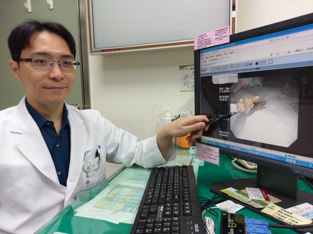 58歲林姓男子連續幾天吃東西都覺得腹痛不舒服,甚至想吐,就醫檢查才發現十二指腸卡...