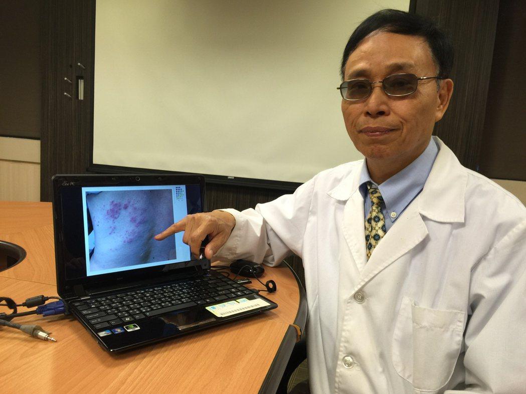 書田診所皮膚科副院長曾興隆提醒,維持規律作息提升免疫力,預防帶狀疱疹上身。...