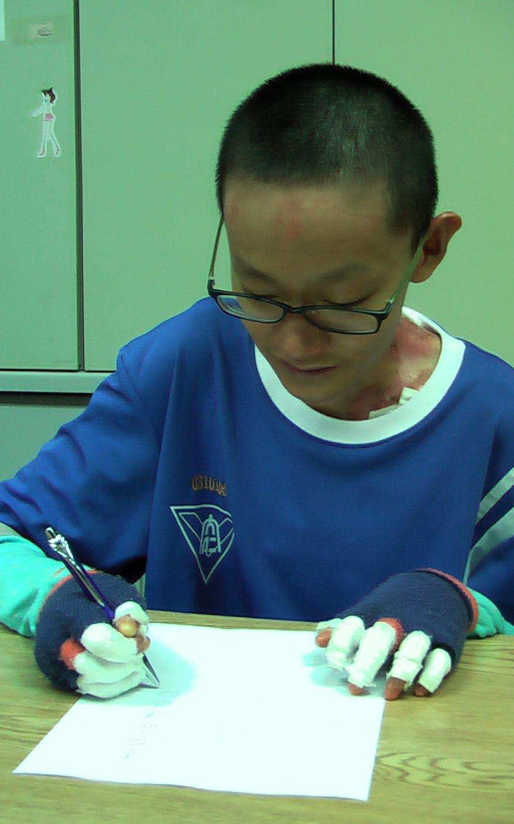 「泡泡龍」唐煒勛用蜷曲的手指關節寫下「不向命運低頭」!記者徐如宜/攝影