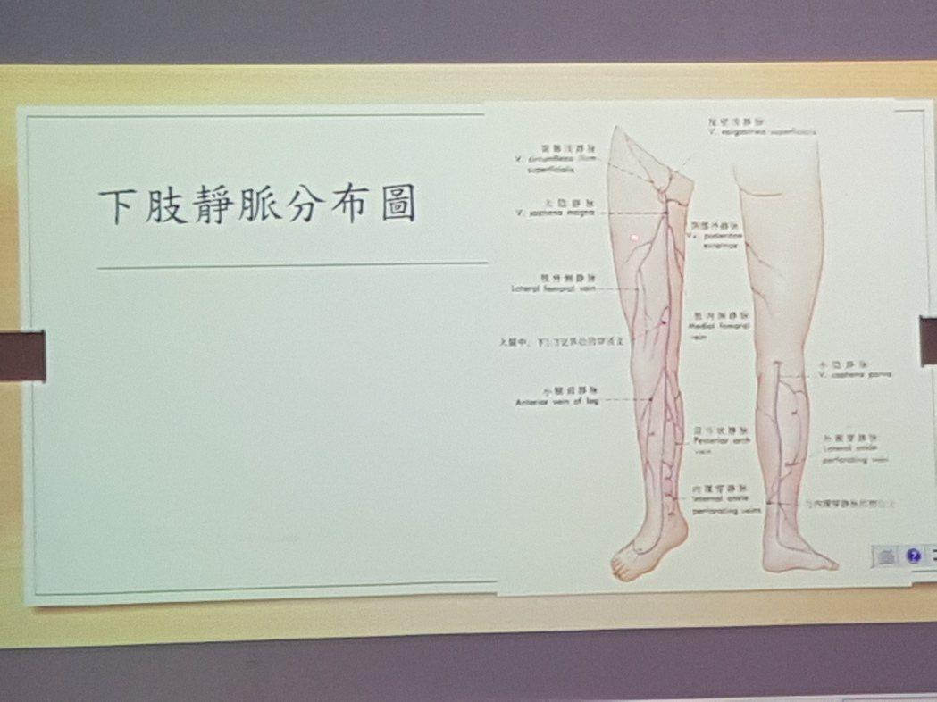 下肢靜脈曲張分為6級 記者修瑞瑩/翻攝