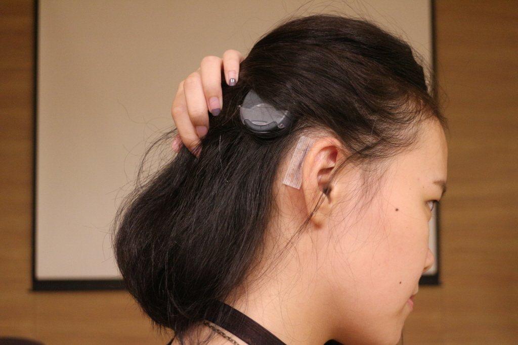 「人工電子耳」手術會於耳後方開三至四公分傷口,將「電極束」植入人體(耳蝸),並從...