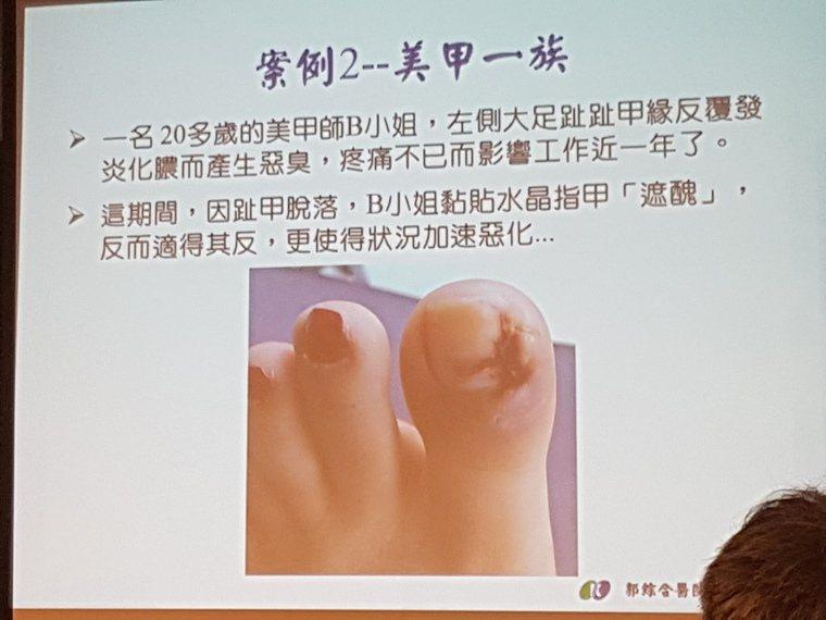 正妹美甲師因愛做指甲,造成腳指嚴重的甲溝炎。記者修瑞瑩/翻攝