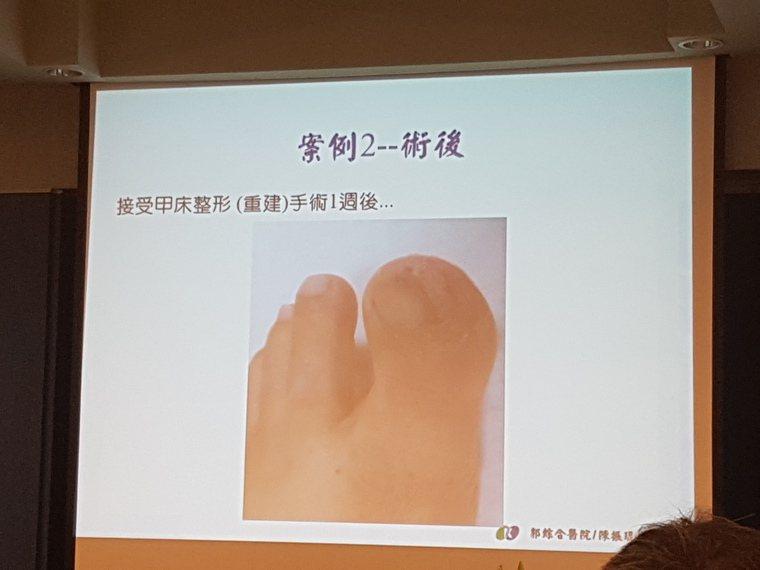 正妹美甲師因愛做指甲,造成腳指嚴重的甲溝炎,接受甲床整形手術才恢復。記者修瑞瑩/...