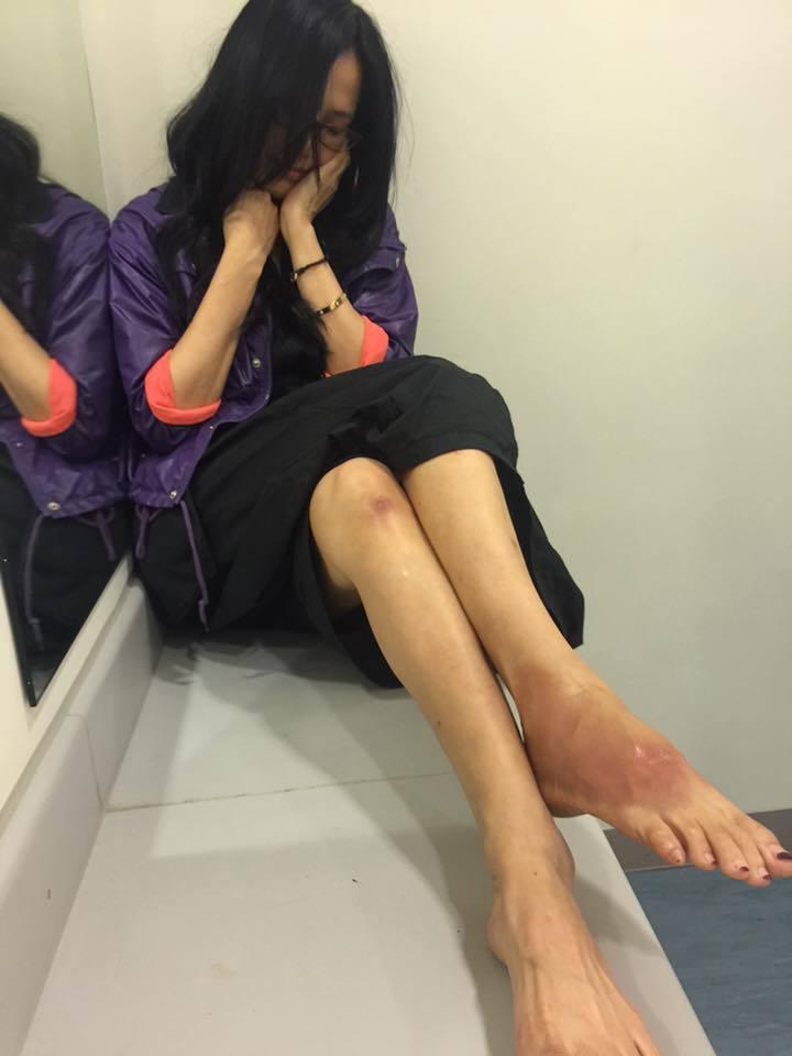 于台煙在臉書貼出腳受傷的照片。圖/摘自于台煙臉書