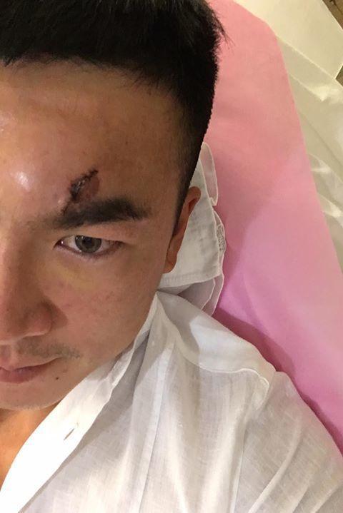 李沛旭PO出傷口照。圖/摘自臉書