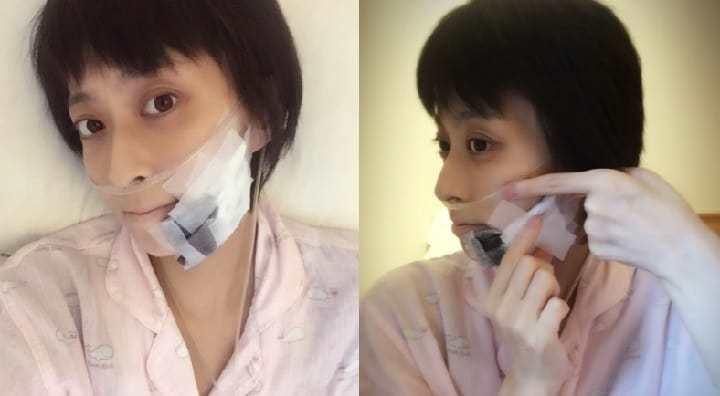 小林麻央自拍坦承癌細胞轉移至下巴。圖/摘自官方部落格