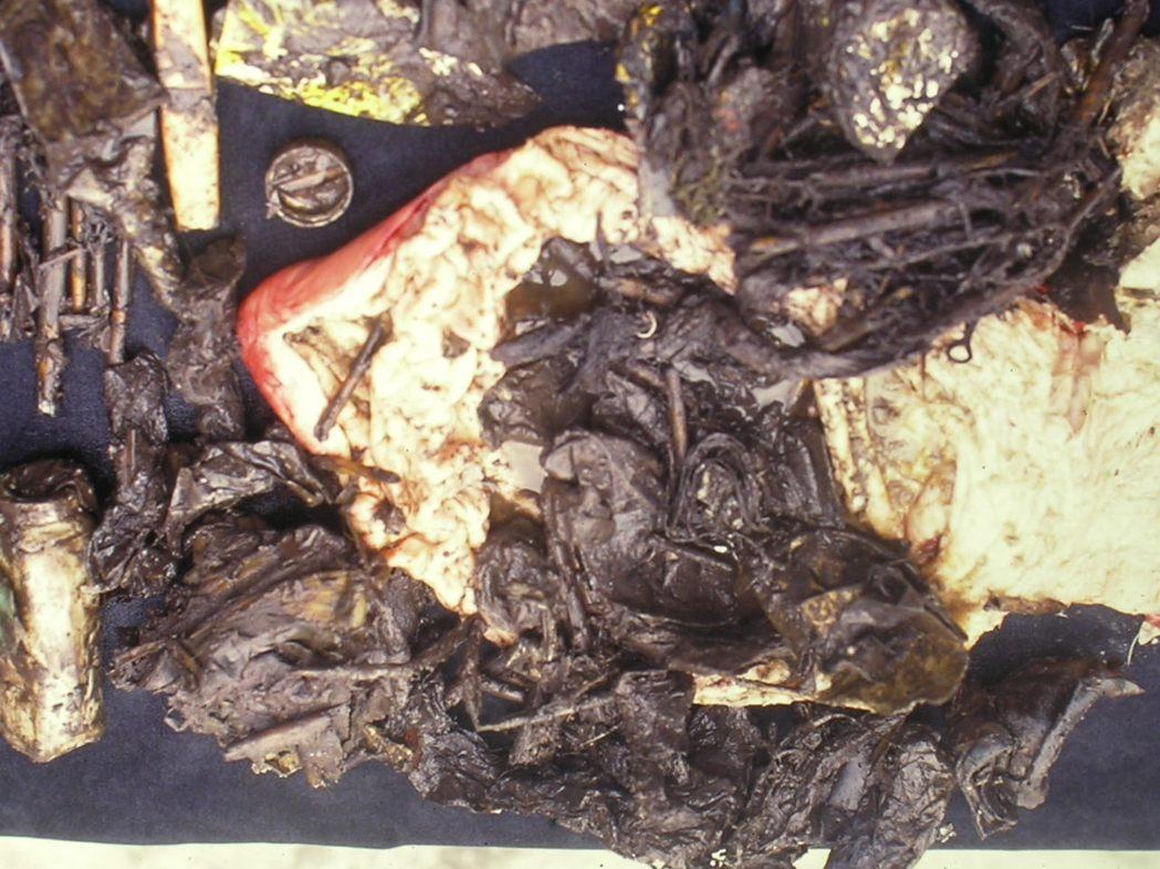 在嘉義東石海邊死亡的海豚,醫師發現牠的胃裡盡是寶特瓶蓋(左上角像硬幣、白色那個)...
