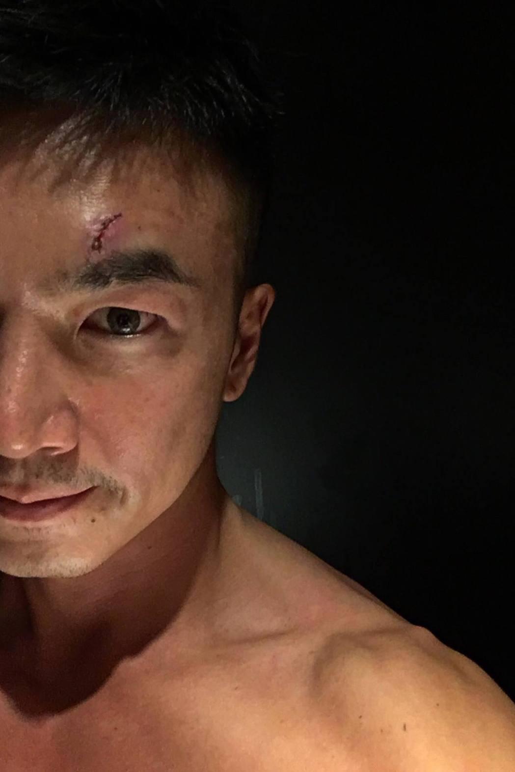 李沛旭拍戲時額頭受傷縫了11針。 圖/擷自李沛旭臉書