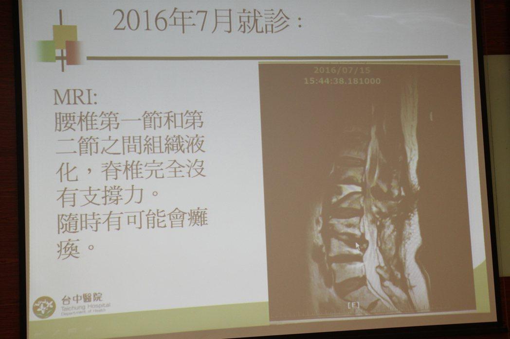 署立台中醫院骨科醫師洪宗賢說,黃婦因手術不當,脊椎第1、2節組織液化。記者黃寅/...