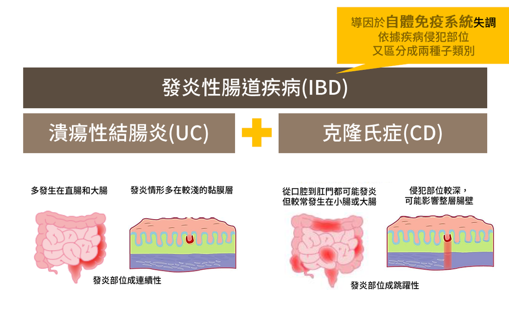 「慢腸炎」是什麼? 圖/台灣發炎性腸道疾病學會提供