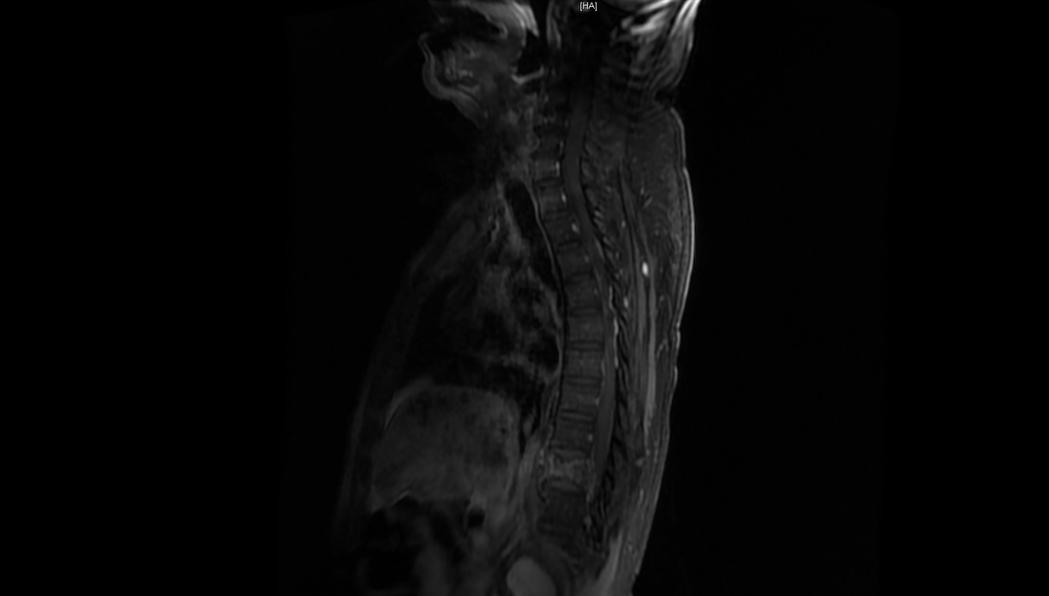 一名62歲男子因背痛難耐就醫,從超音波發現胸椎第10節(脊椎下方反白處)早已蝕壞...