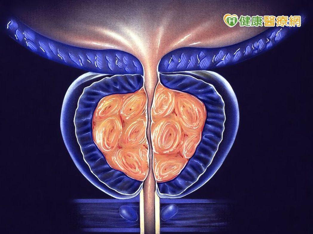 攝護腺癌篩檢包括:肛門指診、抽血檢驗PSA、切片檢查等。