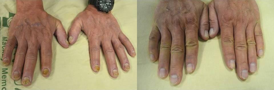 乾癬指甲病灶治療前(左)與治療後(右),增厚變色的指甲,復原良好。圖/新竹馬偕醫...
