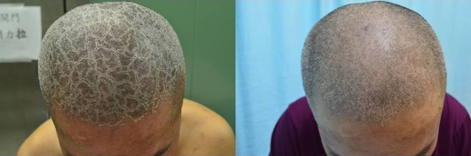 乾癬頭皮病灶治療前(左)與治療後(右),硬殼似的乾癬斑塊獲得改善。圖/新竹馬偕醫...