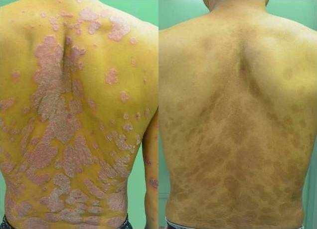 乾癬皮膚病灶治療前(左)與治療後(右),已無斑塊及脫屑情況,膚觸也如常人。圖/新...