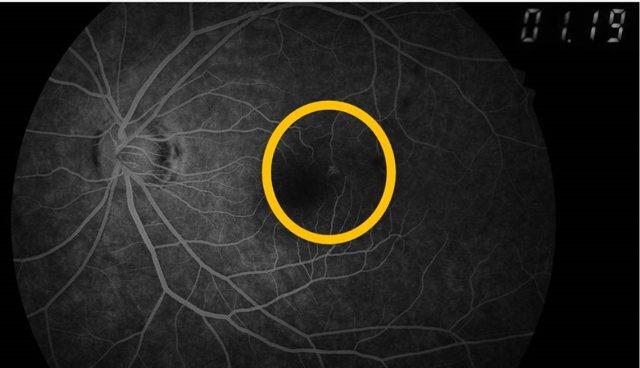 22歲吳姓女大生每天搭捷運必滑手機,眼睛黃斑部在螢光眼底攝影下,顯示已有少許滲漏,出現早期病變。