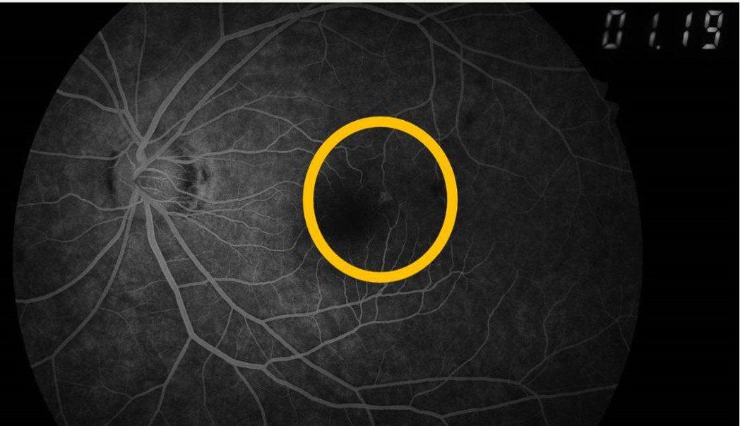 22歲吳姓女大生每天搭捷運必滑手機,黃斑部在螢光眼底攝影下,顯示已有少許滲漏,出...