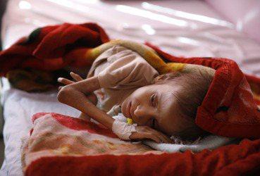 葉門內戰因封鎖而造成的饑荒,誰的責任? 圖/路透社