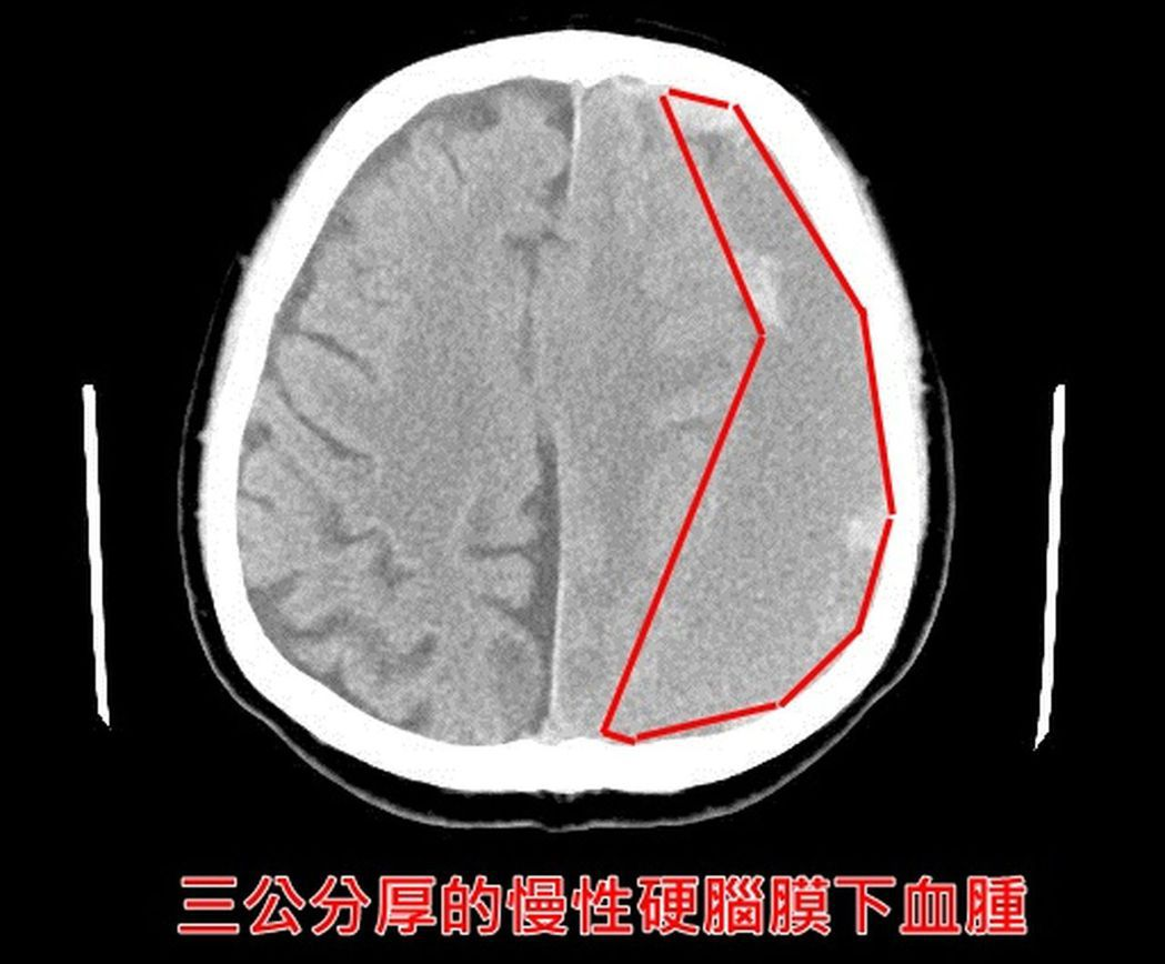 3公分厚的慢性硬腦膜下血腫。圖/醫師李建裕提供