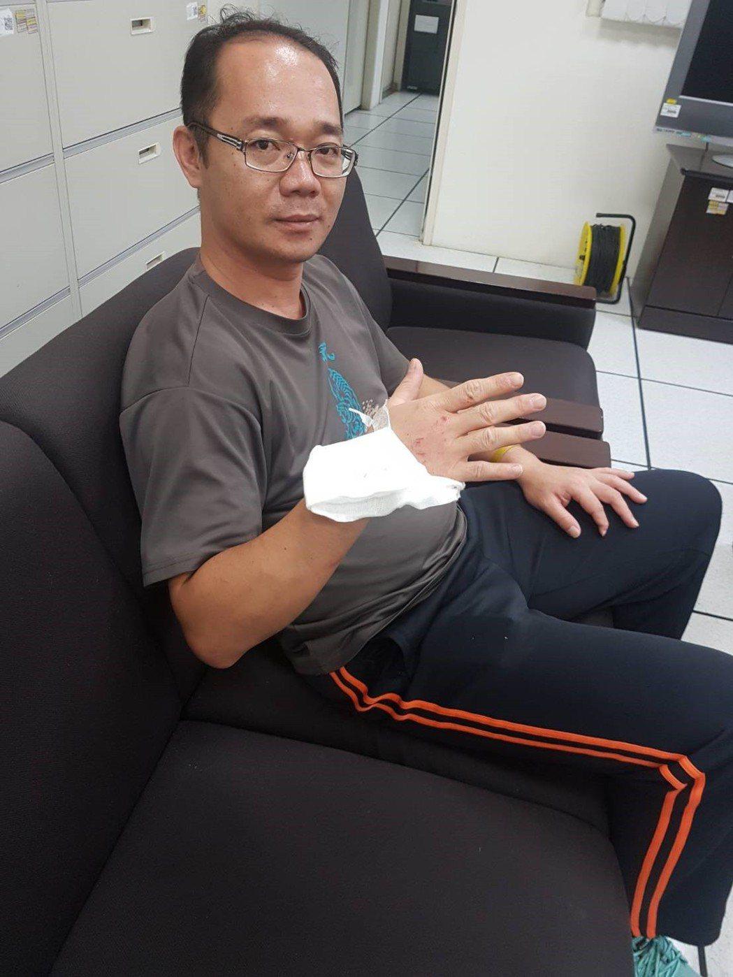 張振昌徒手救人時,手因此擦傷。記者陳妍霖/翻攝