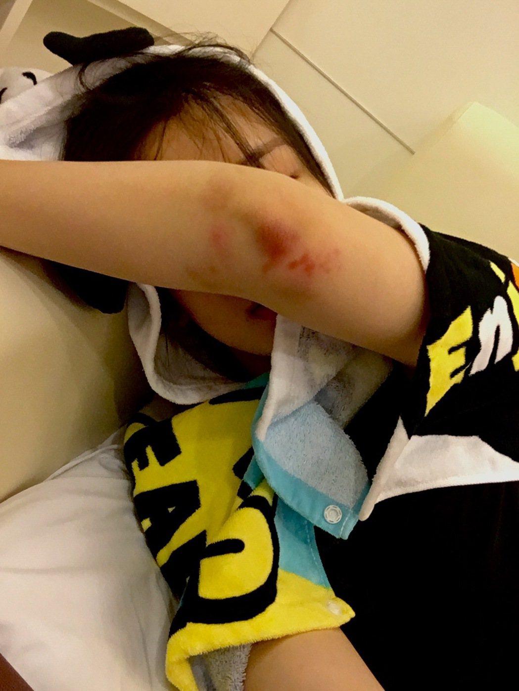 陳昊宇拍戲經常摔到雙腳瘀青、骨頭裂,傷勢看來怵目驚心。圖/伽納娛樂提供