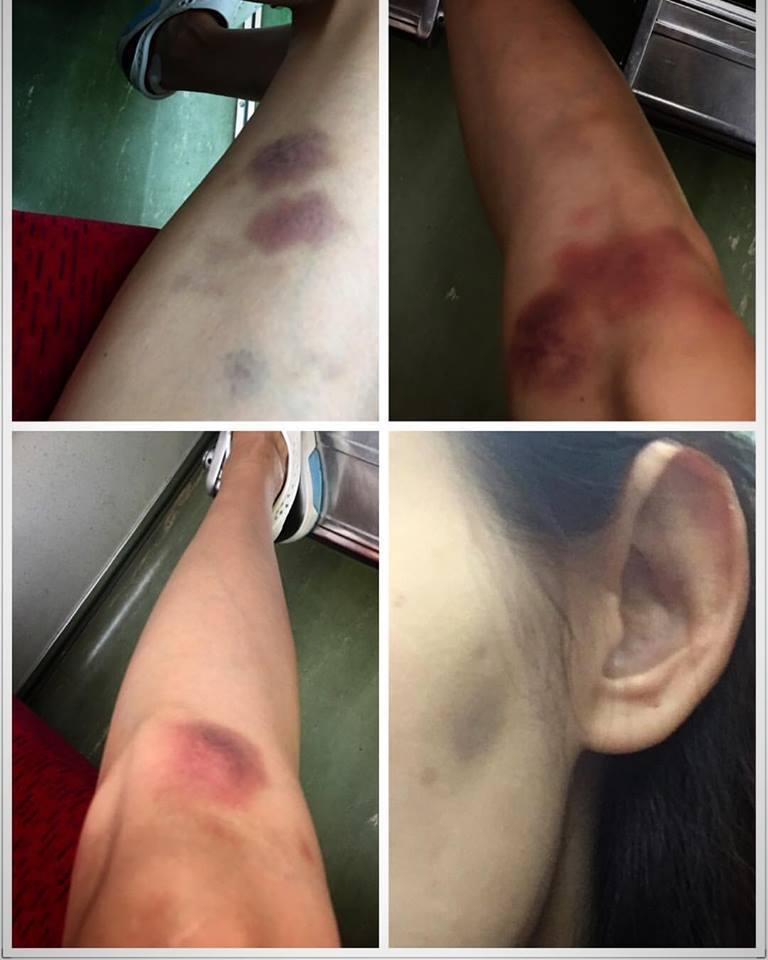 袁艾菲在臉書上po出為拍戲受傷的照片,證明工作並不輕鬆  圖/摘自臉書