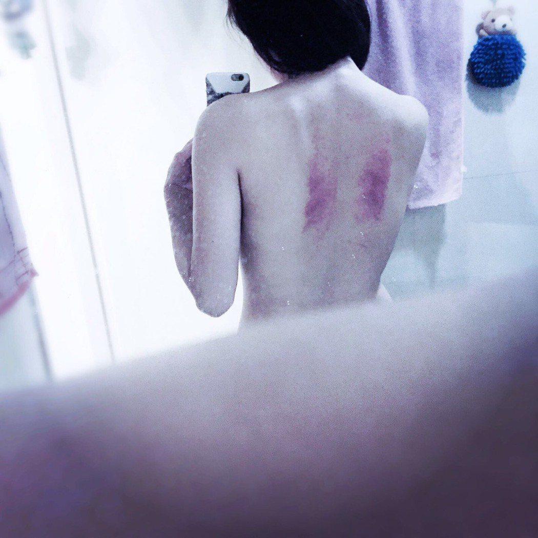 蘇晏霈拍「春花望露」殺青後按摩,按出背兩條瘀青發紅。圖/民視提供