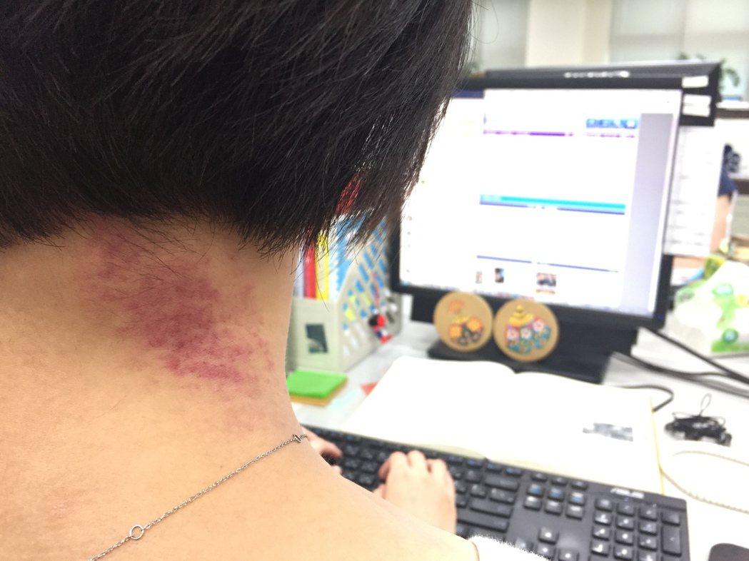 當心紫斑症已悄然上身!如何分辨您是血管比較脆弱?(示意圖) 攝影/丁志榮