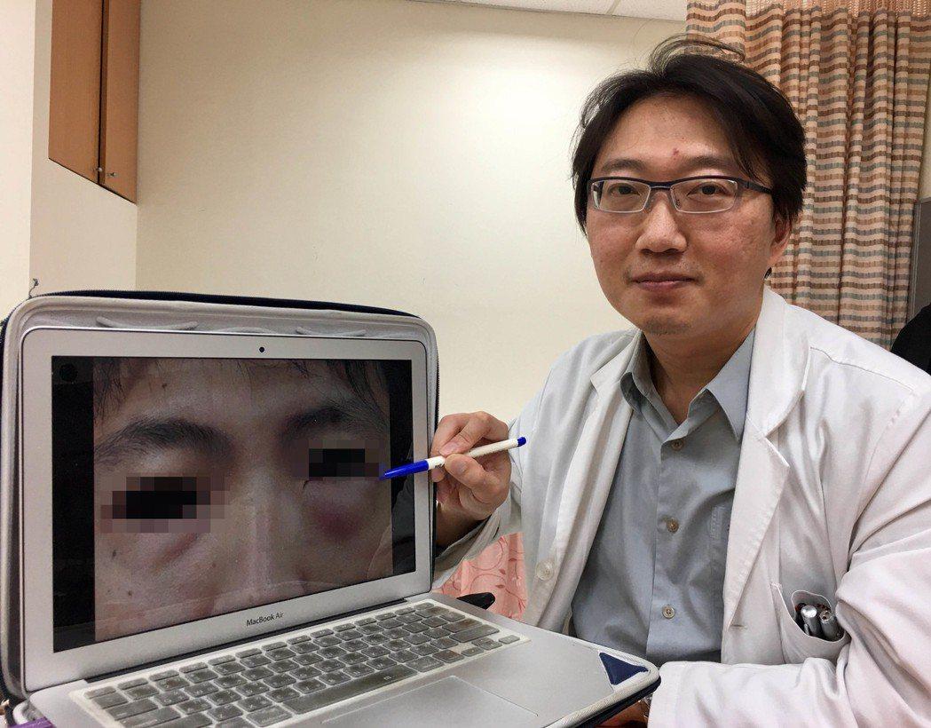 醫師邱昱勳指出,個案男子擤鼻涕過度用力,擤裂眼眶骨頭,導致空氣從裂骨灌進眼袋皮下...