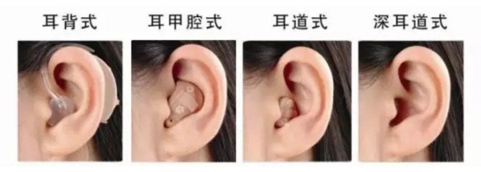 助聽器種類眾多。圖/臺北榮民總醫院新竹分院提供