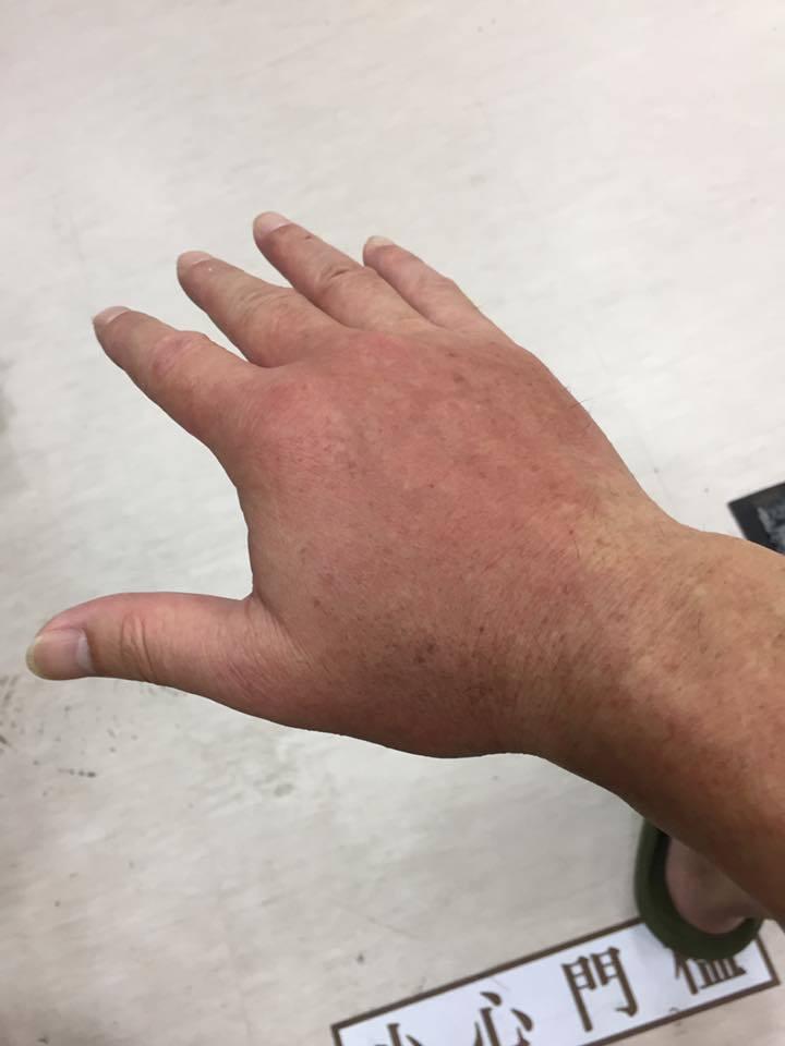 黃仲崑被不知毒蟲咬到,手又腫又痛。 圖/擷自黃仲崑臉書