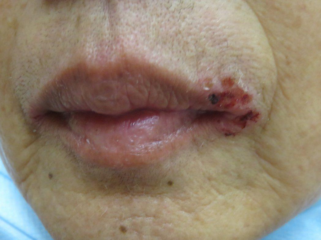 35歲的廖姓室內設計師,唇皰疹經常反覆發作,求診時還向醫師抱怨「簡直比生理期更惱...