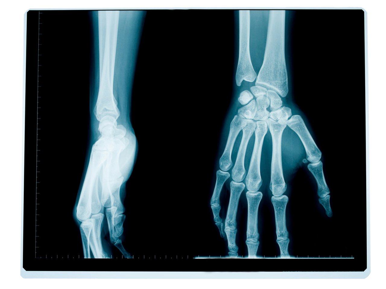 圖為手部X光示意圖。/擷取自Ingimage