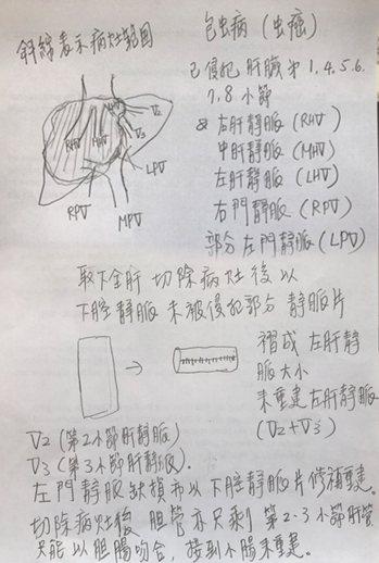 元氣網獨家取得陳肇隆親筆繪製的手術解說圖。 照片/高雄長庚提供