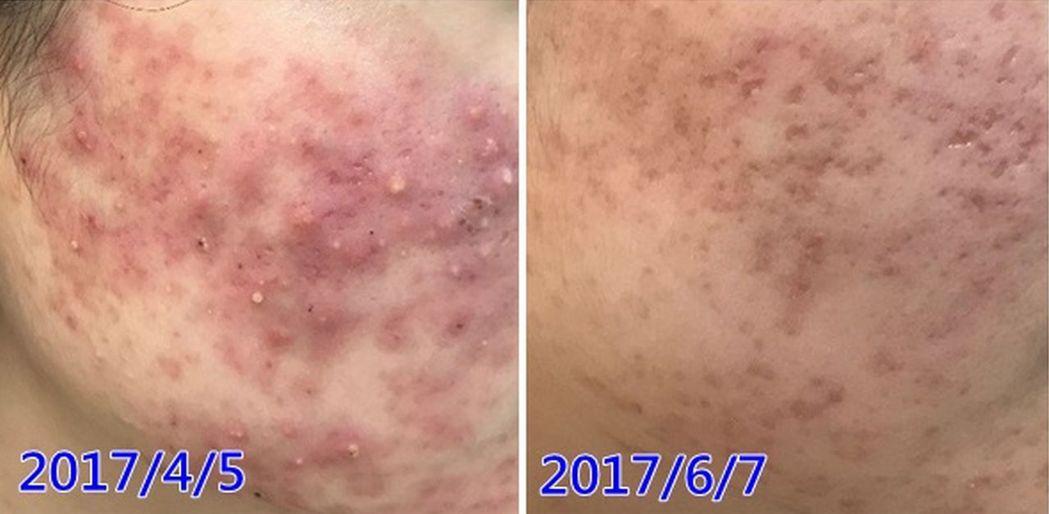 蔡姓正妹治療前,臉頰兩側出現膿皰的丘疹狀痘痘(左),經中醫治療加上作息、飲食調整...