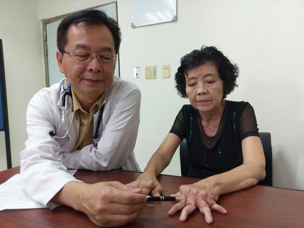 張姓婦人20多年前罹患「類風濕性關節炎」,因早期未及時就醫診治,導致關節逐漸變形...