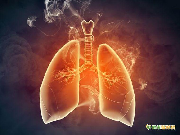 長期又咳又喘害怕就醫 小心「菜瓜布肺」找上你