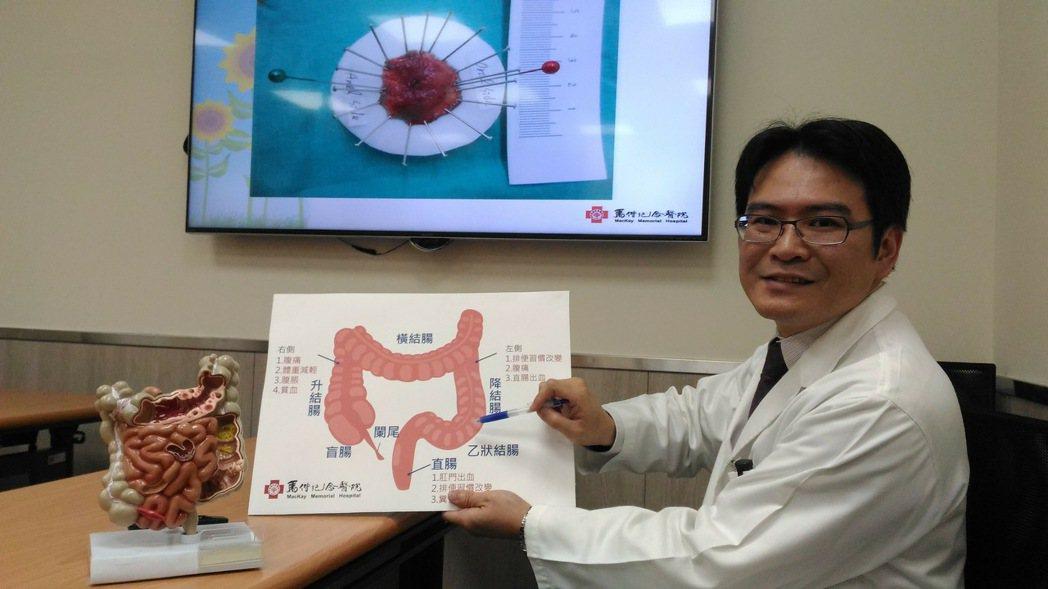 馬偕紀念醫院大腸直腸外科資深主治醫師楊靖國說明內視鏡黏膜下剝離術可針對2公分以上...