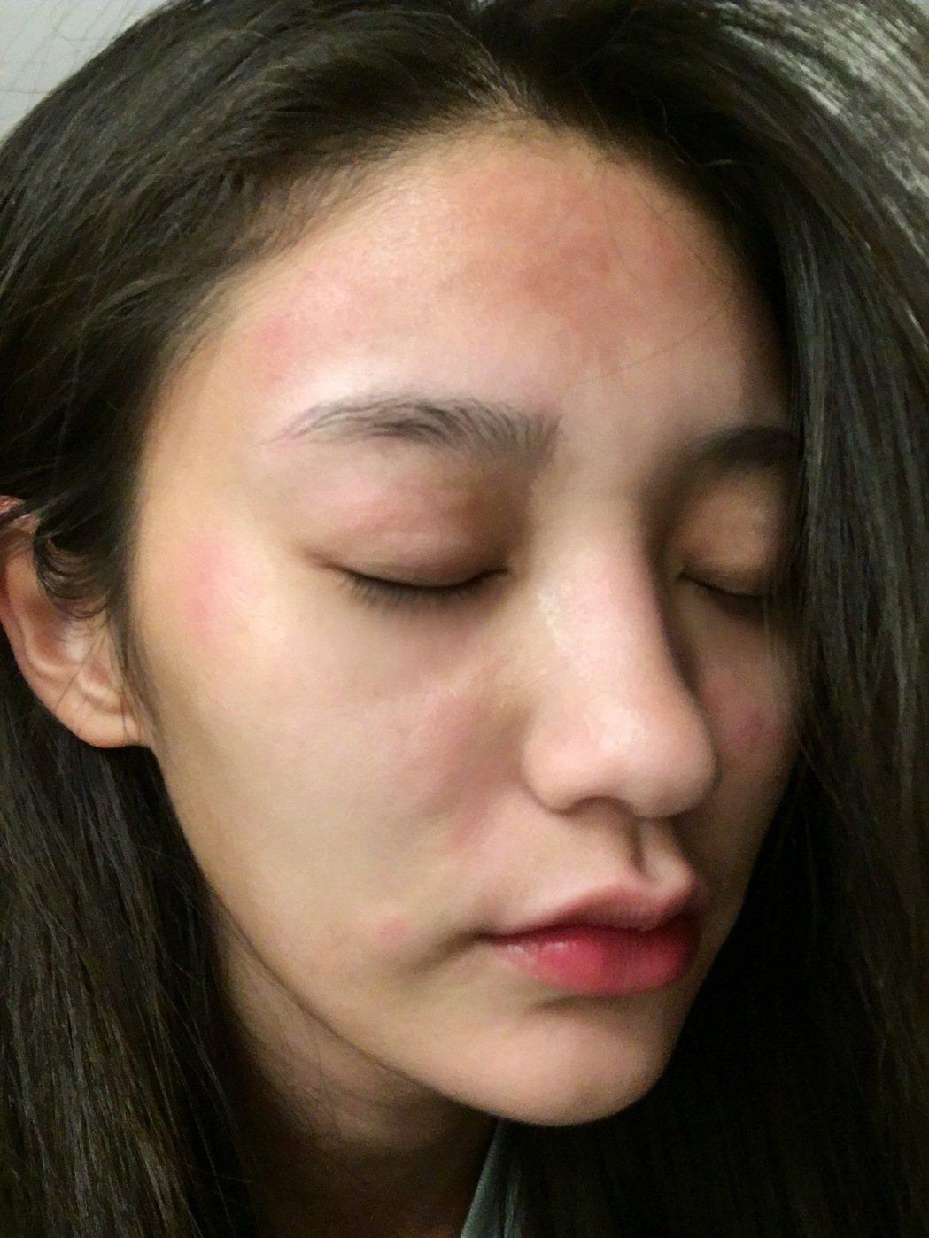 王顗婷拍海灘戲,因未擦防曬油,臉部大過敏。圖/民視提供