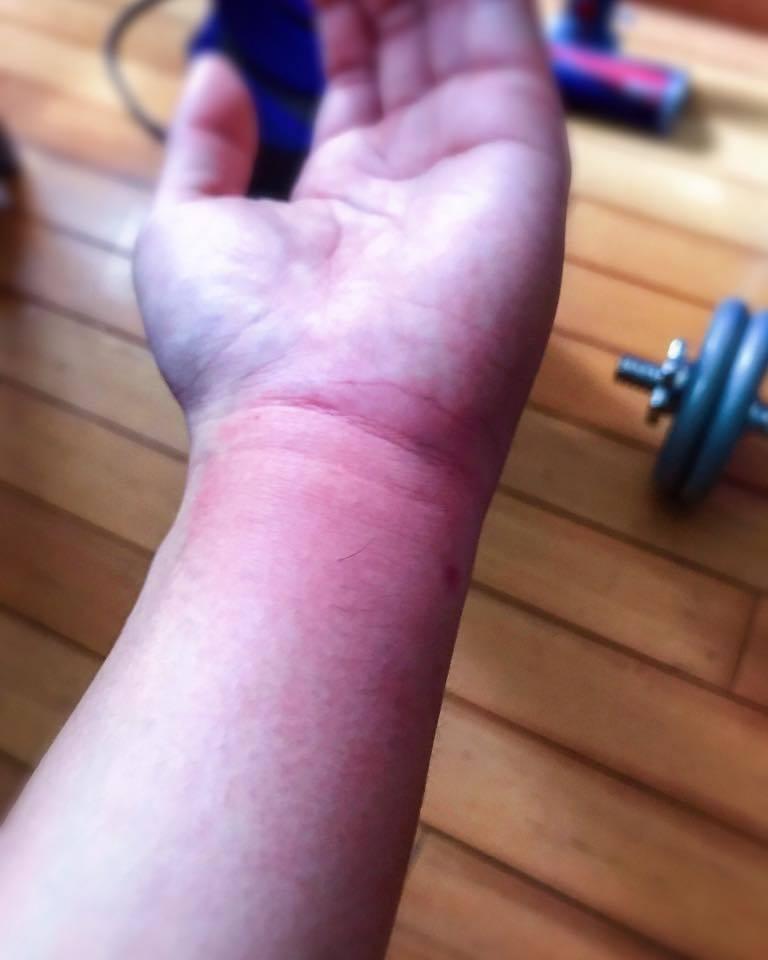 李國毅颱風夜被蜂叮,僅自行居家處理傷勢。圖/摘自李國毅臉書