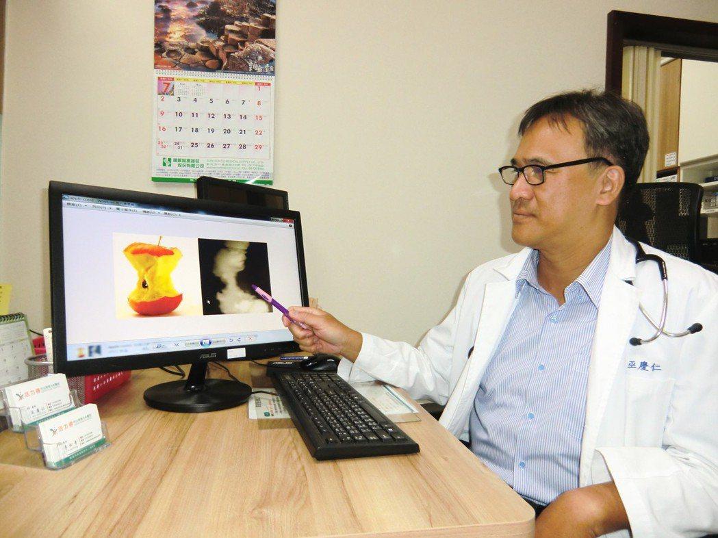 內科醫師巫慶仁表示,他收治一名56歲父親因警覺性高及早做了大腸癌檢查,結果從腸道...