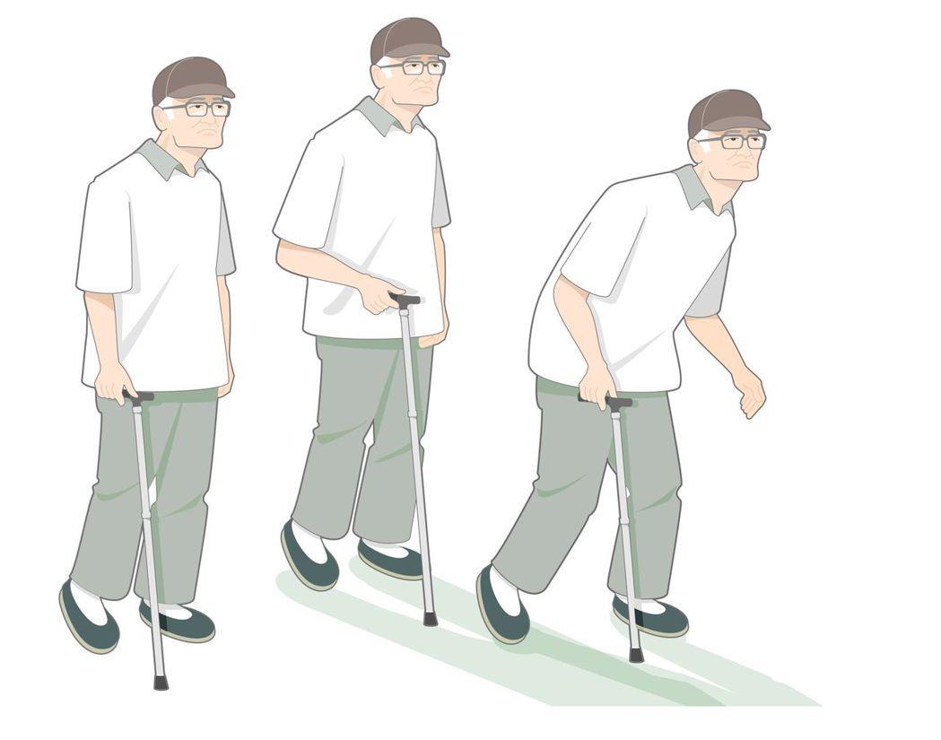 巴金森氏症常見症狀包括行動遲緩、四肢僵硬、手腳顫抖、駝背等。圖/廖珮涵繪製