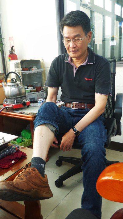 傅貫吉撩起褲管,還有當年遭彈片火星灼傷的點點傷痕。 記者林保光/攝影